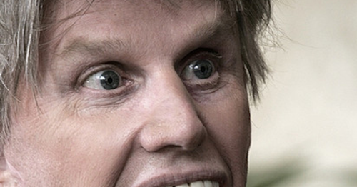 Gary Busey Head Injury