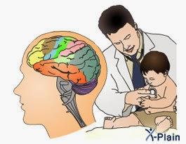 الوقاية من الشلل الدماغي Jjjjjjjjjjjjjjjjjj