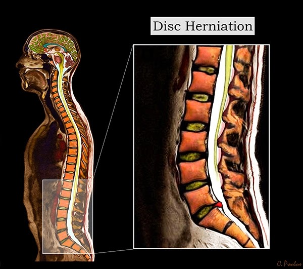 Sagittal Color MRI of a Lumbar Disc Herniation