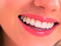 Cara Memutihkan Gigi Kuning Secara Alami