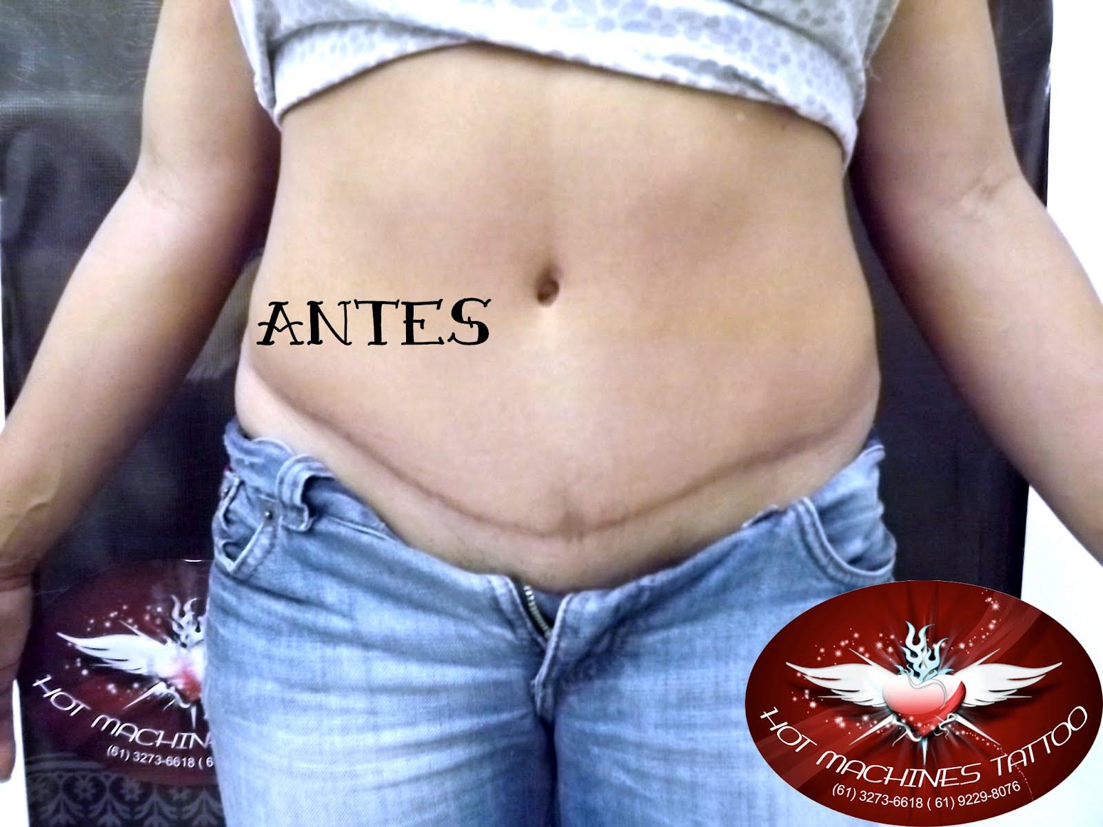 Tattoo Cobertura De Cicatriz De Abdominoplastia
