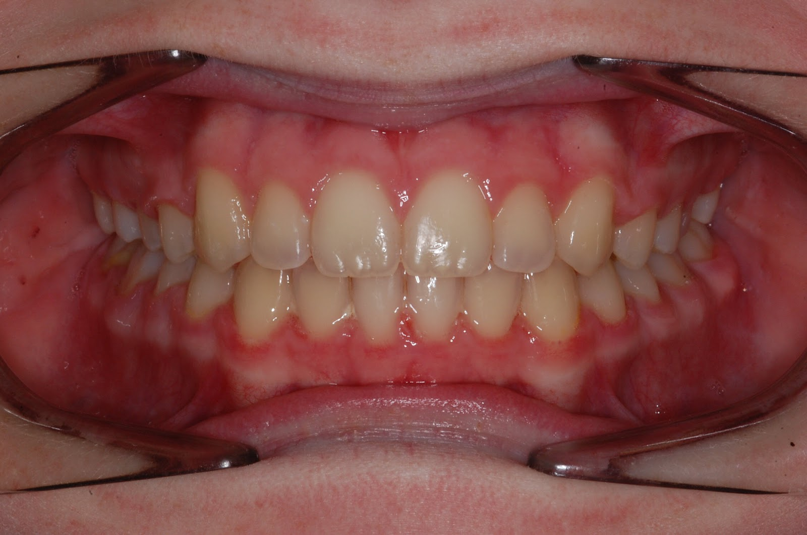 Truman Orthodontics: Teenager With Dental Crowding and ...