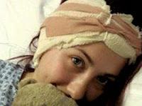 Gara-gara Tindik Kuping, Telinga Gadis Ini Diamputasi