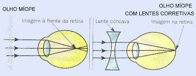 Esquema da formação da imagem em um olho míope. A imagem se forma antes da retina. É necessário uma lente divergente para corrigir o problema.