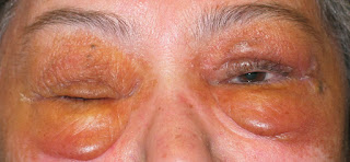 Obat Herbal Amiloidosis