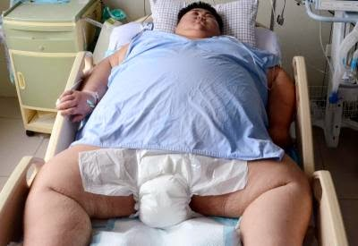 CHINA-HEALTH-OBESITY