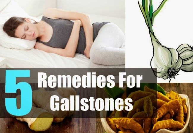 Natural Cures for Gallstones