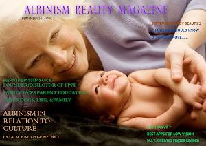 Albinism Beauty Magazine