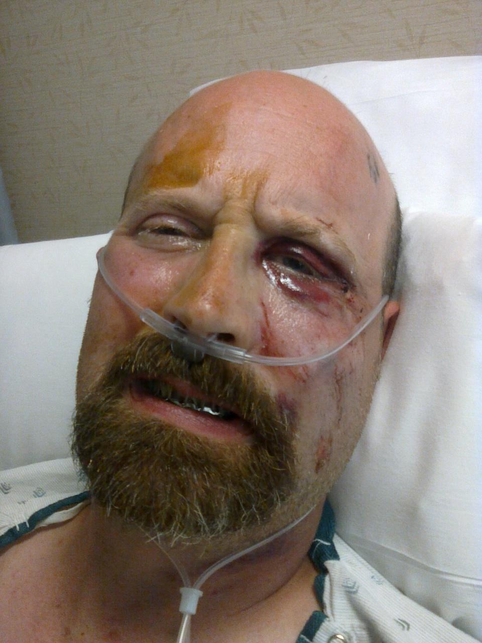 moonshiner\'s rough riders: jaw wired shut, titanium in body