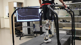 Tech Automatically 'Tune' Prosthetics While Walking