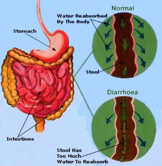 Diarrhoea Cause
