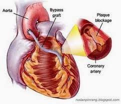 obat jantung bocor herbal