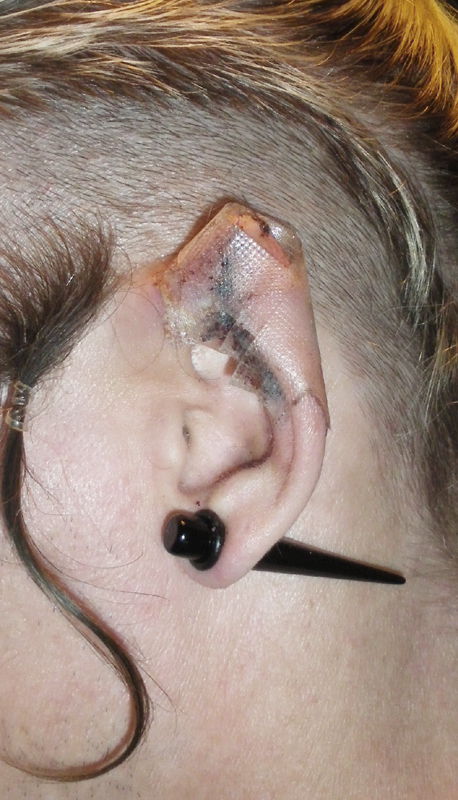 Other Day - Other Elves - a blog about ear pointing: not ... Ear Pointing Healed