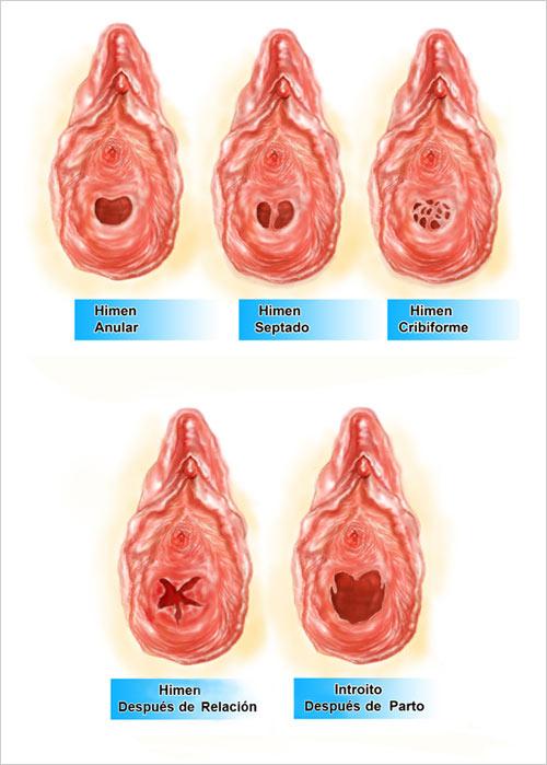 ... que cierra parcialmente la entrada de la vagina su forma es variable