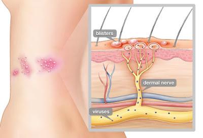 Datos que desconocias del Herpes Zóster