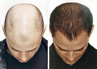 Penumbuh rambut alami ampuh