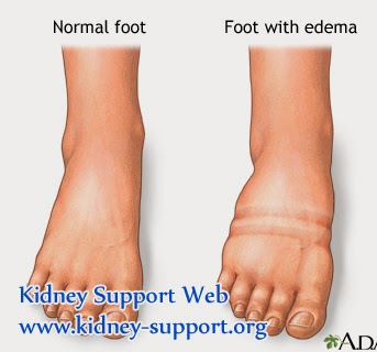 Treatment for Nephrotic Syndrome with Edema