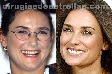 demi moore antes y despues