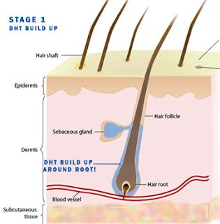 Pérdida de Cabello (II): Alopecia Androgénica