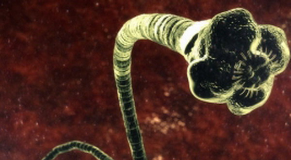 Inilah Organisme Pemakan Otak Manusia