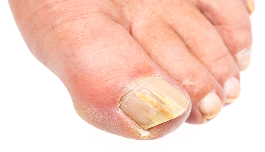 Какие симптомы у грибка на стопах ног