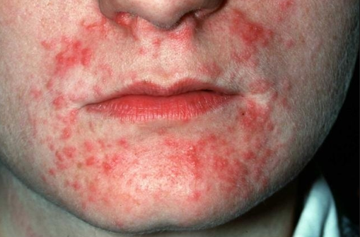 how to get rid of eczema around mouth