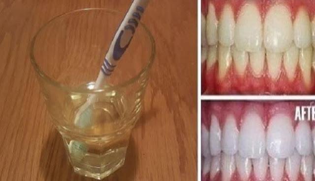 Bermasalah dengan Warna Gigi? Yuk Putihkan Gigi Anda dalam 3 Menit dengan CARA INI!