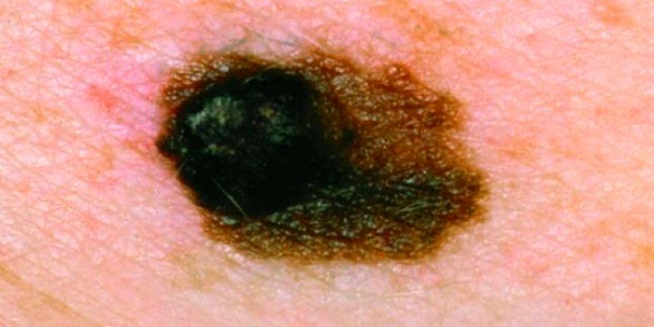 Photos of Skin Cancer