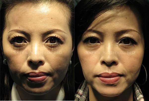 Radiesse晶亮瓷全臉雕塑, 趙彥宇醫師  Yates Y. Chao, MD