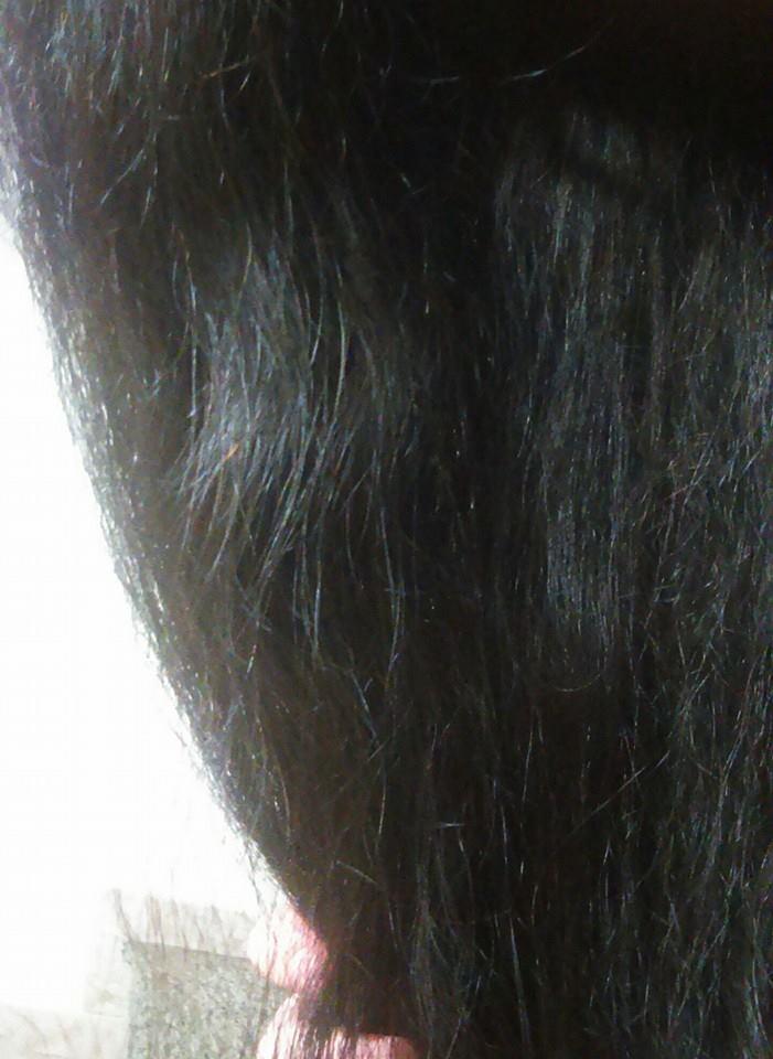 Che fare a ostacolo di ghiandole sebaceous su una faccia