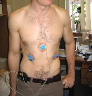 Heart Monitors Loop Recorders Holter Moonitors