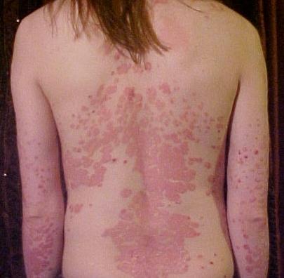 La vitamina D se utiliza como tratamiento para la psoriasis