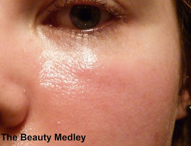 The beauty medley que faire en cas d 39 allergie un produit cosm tique - Que faire apres un coup de soleil ...
