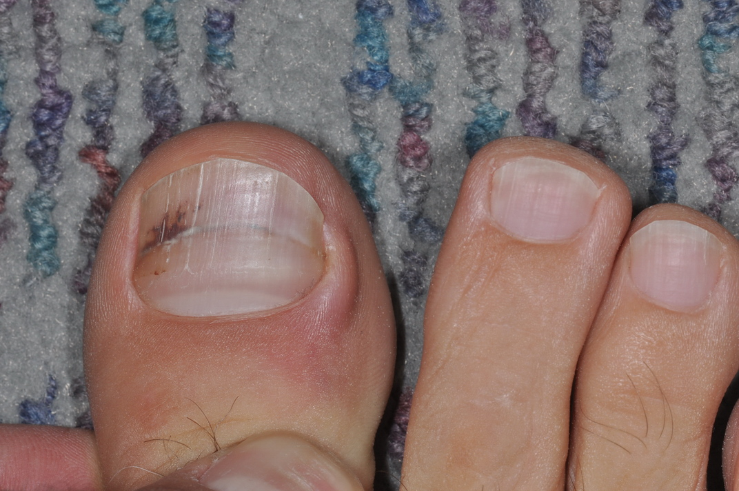 melanoma on toe #11