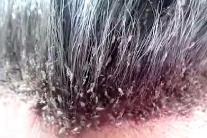 Kutu Rambut di Kepala Pria Ini Buat Anda Merinding