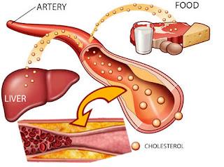 Cara cepat menurunkan kolesterol dengan Melia Propolis