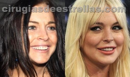 Lindsay Lohan y su cirugia de pómulos