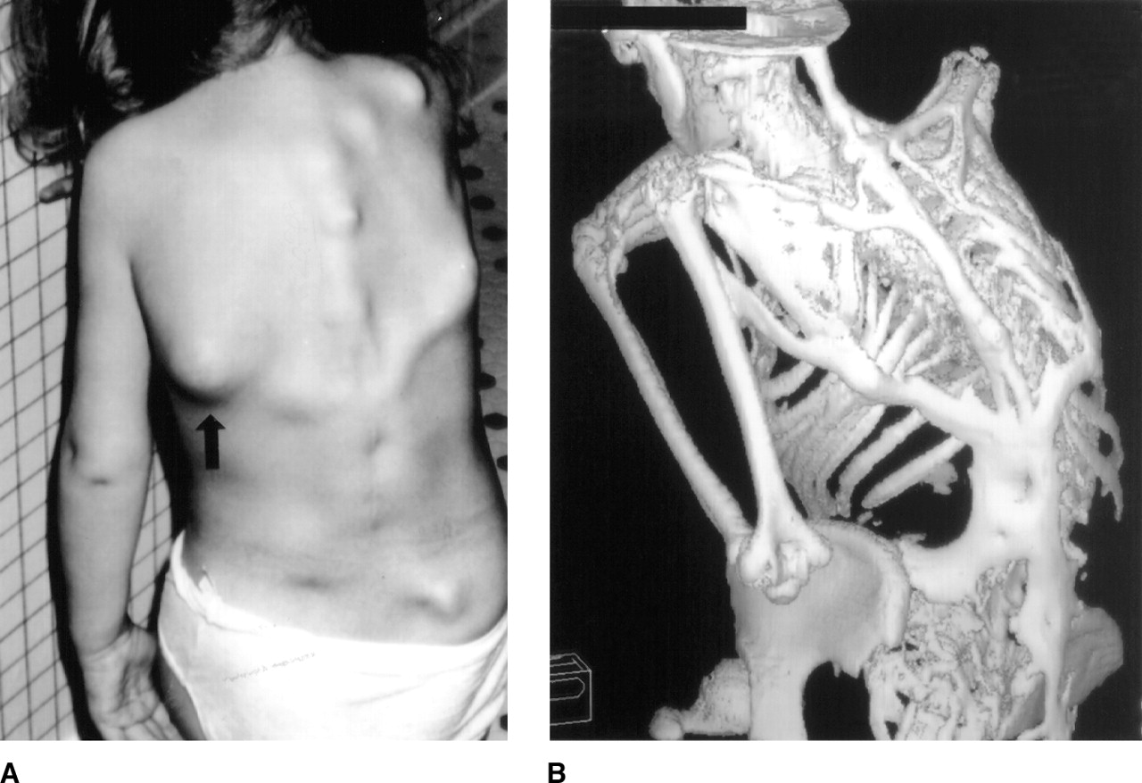 fibrodysplasia ossificans progressiva is a disorder of Fibrodysplasia ossificans progressiva (fop) is a condition in which bone grows outside the skeleton abnormal bone growth replaces connective tissue, including tendons and ligaments.