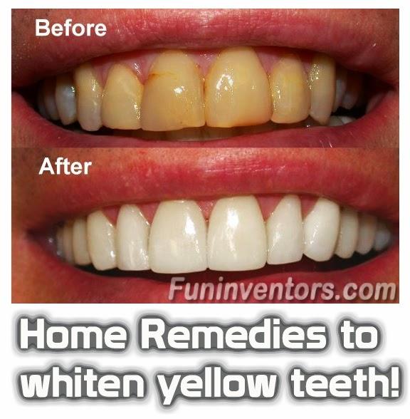 Home Remedies to whiten yellow teeth