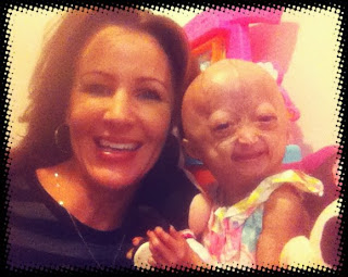 family nbsp lose hair grows abnormally nbsp specific treatment progeria