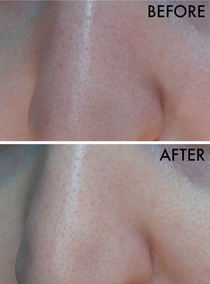 UNT Pore Minissima Super Anti Shine Oil Control Serum before and after