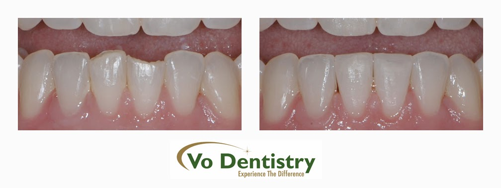 Tooth Colored Restorations, composite restorations, conservative restorations, broken tooth restorations, chipped tooth restorations, dentists, cosmetic dentists,  implant dentists, family dentist, general dentist, restorative dentist, children dentist,  cosmetic dentistry, implant dentistry, laser dentistry, dentist Lawrenceville, Lawrenceville dentist, Gwinnett dentist, dentist Georgia, dentist Atlanta, Dr. Vo, Dr. Lia Vo, Vo Dentistry, female dentist, woman dentist, porcelain crowns, porcelain veneers, bridges, dental implants, extractions, wisdom teeth removal, deep cleaning, gum surgery, teeth whitening, oral surgery, root canals, full-mouth reconstruction, white tooth colored fillings, composite fillings, dentures, partials, smile makeovers, flexible financing, no interest financing, care credit, night guards, mouth guards, Lawrenceville, Norcross, Buford, Hamilton Mill, Dacula, Auburn, Sugar Hill, Sugar Loaf, Doraville, Chamblee, Stone Mountain, Decatur, Collins Hill, Snellville, Suwanee, Grayson, Lilburn, Duluth, Cumming, Alpharetta, Marietta, Dekalb County, Gwinnett County, Atlanta, North Georgia, GA, Georgia, 30043, 30044, 30045, 30093