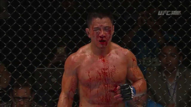 Cung Le bloodied swollen eyes vs. Bisping in UFC Fight Night 48