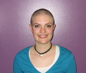 Rachel A. with no hair