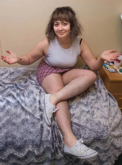 This Girl Took Internet by Storm by Sharing Photos of Her Hairy ...