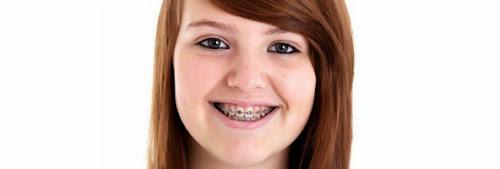 Adolescente morre com infecção rara após usar seu primeiro absorvente