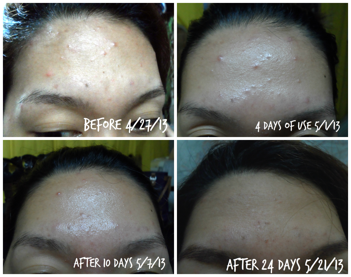 Tretinoin tablets