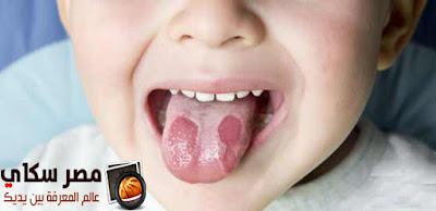 ما هى  فطريات الفم وطرق علاجها Fungal mouth and methods of treatment