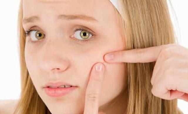 Tips Cara Menghilangkan jerawat, jerawat, cara memutihkan wajah, cara menghilangkan noda bekas jerawat, cara menghilangkan bekas jerawat, cara menghilangkan jerawat secara tradisional, obat jerawat, secara alami, jerawat,