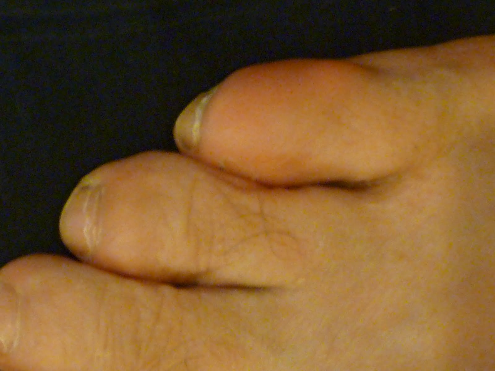 Capsulitis of the second toe, (or any toe)